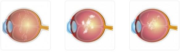 Eye-Floater-Treatment-royal spanish-center-abu dhabi