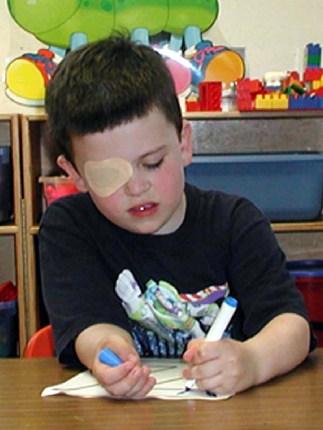 amblyopia treatment in abu dhabi